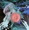 9000 Ft - Clinique Cheek Pop Pirosító - 19 Blush Pop